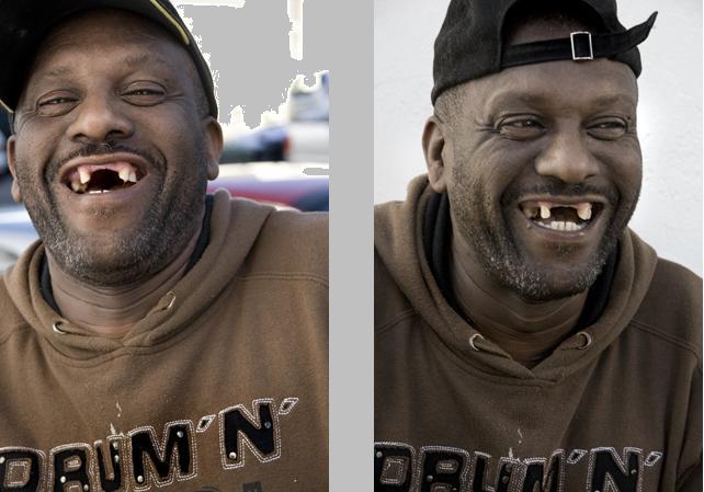 مردم دندان جلو ندارند